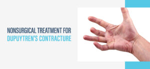 nonsurgical treatment for dupuytren's contracture