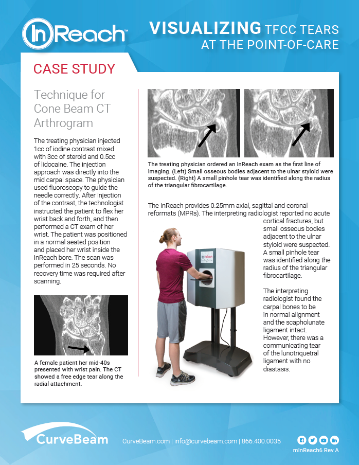 case study cone beam ct arthrogram treatment method for triangular fibrocartilage complex tear